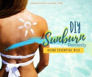 essential oils spray for sunburn healing