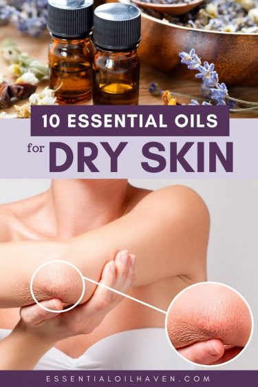 10 essential oils for dry skin