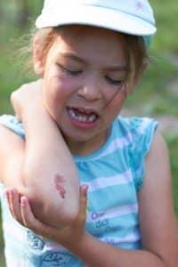 child skin road rash